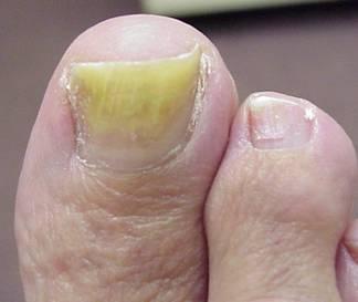ongles-de-pied-jaune-1