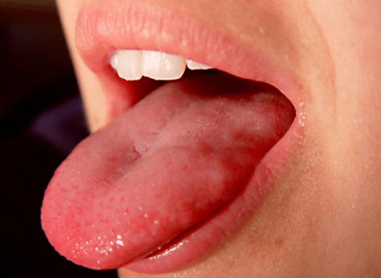 Comment soigner les boutons blancs sur la langue