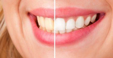 comment-avoir-dent-blanche